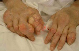 điều trị gout bằng đông y