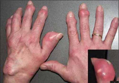 điều trị bệnh gout bằng thuốc nam