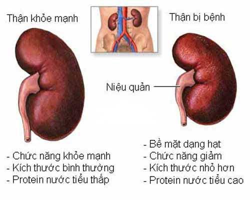 bệnh gút